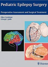 Pediatric Epilepsy Surgery: Preoperative Assessment and Surgical Treatment, 1e (Original Publisher PDF)
