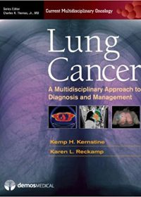 Lung Cancer: A Multidisciplinary Approach to Diagnosis and Management, 1e (Original Publisher PDF)