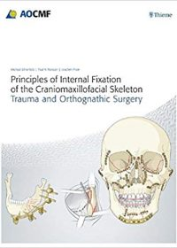Principles of Internal Fixation of the Craniomaxillofacial Skeleton: Trauma and Othognathic Surgery, 1e (Original Publisher PDF)