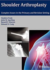 Shoulder Arthroplasty: Complex Issues in the Primary and Revision Setting, 1e (Original Publisher PDF)