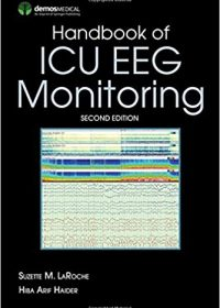 Handbook of ICU EEG Monitoring, 2e (Original Publisher PDF)
