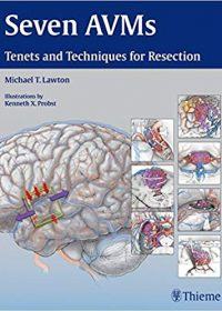 Seven AVMs: Tenets and Techniques for Resection, 1e (Original Publisher PDF)