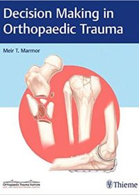 Decision Making in Orthopaedic Trauma, 1e (Original Publisher PDF)