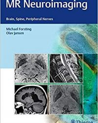 MR Neuroimaging: Brain, Spine, and Peripheral Nerves, 1e (Original Publisher PDF)