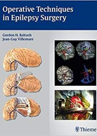 Operative Techniques in Epilepsy Surgery, 1e (Original Publisher PDF)