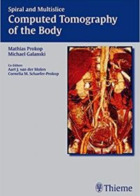 Spiral and Multislice Computed Tomography of the Body, 1e (Original Publisher PDF)