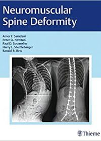 Neuromuscular Spine Deformity, 1e (Original Publisher PDF)