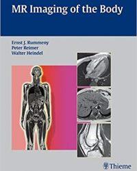 MR Imaging of the Body, 1e (Original Publisher PDF)