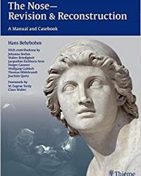 The Nose - Revision and Reconstruction: A Manual and Casebook, 1e (Original Publisher PDF)