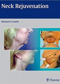 Neck Rejuvenation, 1e (Original Publisher PDF)