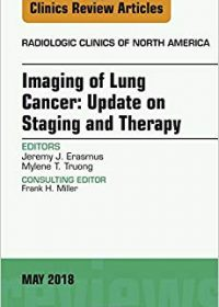 Lung Cancer, An Issue of Radiologic Clinics of North America, 1e (Original Publisher PDF)