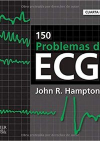 150 problemas de ECG, 4e (Original Publisher PDF)
