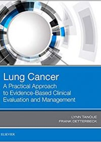 Lung Cancer: A Practical Approach to Evidence-Based Clinical Evaluation and Management, 1e (Original Publisher PDF)