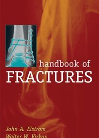 Handbook of Fractures, 3e (Original Publisher PDF)