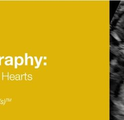 Fetal Echocardiography: Normal and Abnormal Hearts 2019 (Videos+PDFs)