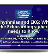 Arrhythmias and EKG: What the Echocardiographer Needs to Know (Videos)