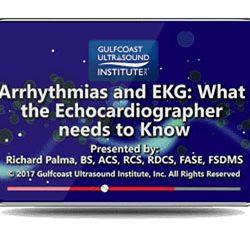 Arrhythmias and EKG: What the Echocardiographer Needs to Know (Videos)