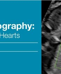 Fetal Echocardiography Normal and Abnormal Hearts 2018 (Videos)