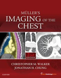 Muller's Imaging of the Chest: Expert Radiology Series, 2e (Original Publisher PDF)