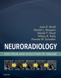 Neuroradiology Spectrum and Evolution of Disease, 1e (True PDF)