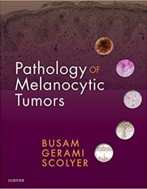Pathology of Melanocytic Tumors, 1e (True PDF)