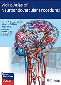 Video Atlas of Neuroendovascular Procedures (Original Publisher PDF)