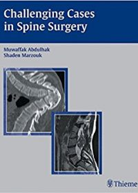 Challenging Cases in Spine Surgery, 1e (Original Publisher PDF)