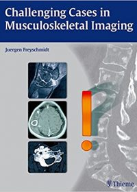 Challenging Cases in Musculoskeletal Imaging, 1e (Original Publisher PDF)