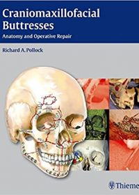 Craniomaxillofacial Buttresses: Anatomy and Operative Repair, 1e (Original Publisher PDF)