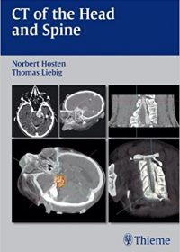 CT of the Head and Spine, 1e (Original Publisher PDF)
