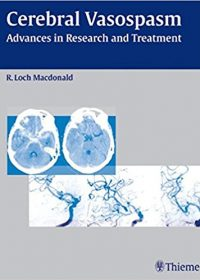 Cerebral Vasospasm: Advances in Research and Treatment, 1e (Original Publisher PDF)