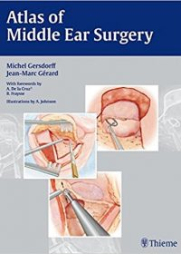 Atlas of Middle Ear Surgery, 1e (Original Publisher PDF)