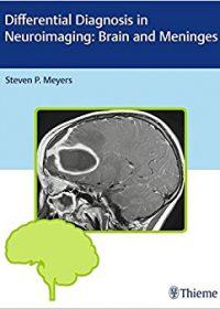 Differential Diagnosis in Neuroimaging: Brain and Meninges, 1e (Original Publisher PDF)