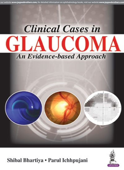 Clinical Cases in Glaucoma: An Evidence-based Approach, 1e (True PDF)