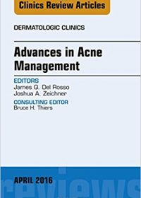 Advances in Acne Management, An Issue of Dermatologic Clinics, 1e (Original Publisher PDF)