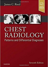 Chest Radiology: Patterns and Differential Diagnoses, 7e (Original Publisher PDF)