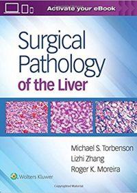 Surgical Pathology of the Liver, 1e (EPUB)