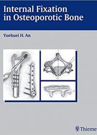 Internal Fixation in Osteoporotic Bone, 1e (Original Publisher PDF)