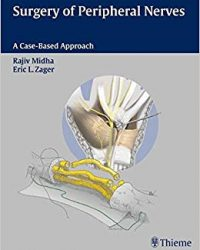 Surgery of Peripheral Nerves, 1e (Original Publisher PDF)