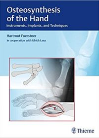 Osteosynthesis of the Hand: Instruments, Implants, and Techniques, 1e (Original Publisher PDF)