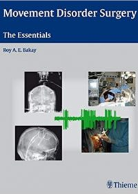 Movement Disorder Surgery: The Essentials, 1e (Original Publisher PDF)