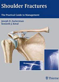 Shoulder Fractures: The Practical Guide to Management, 1e (Original Publisher PDF)