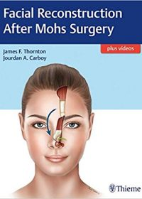 Facial Reconstruction After Mohs Surgery, 1e (Original Publisher PDF)