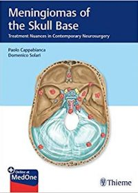Meningiomas of the Skull Base: Treatment Nuances in Contemporary Neurosurgery, 1e (Original Publisher PDF)