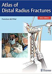 Atlas of Distal Radius Fractures, 1e (Original Publisher PDF)