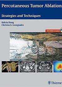 Percutaneous Tumor Ablation: Strategies and Techniques, 1e (Original Publisher PDF)