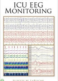 Handbook of ICU EEG Monitoring, 1e (Original Publisher PDF)