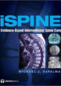 iSpine: Evidence-Based Interventional Spine Care, 1e (Original Publisher PDF)