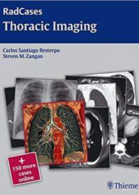 Radcases Thoracic Imaging, 1e (Original Publisher PDF)
