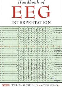 Handbook of Eeg Interpretation, 1e (Original Publisher PDF)